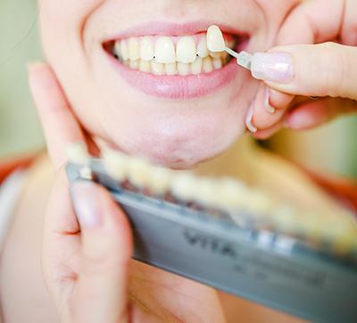 Anpassen der Zahnfarbe
