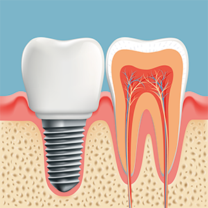 Implantat festsitzender Zahnersatz