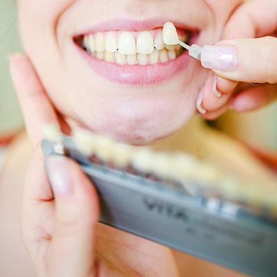 Zahnfarbe anpassen
